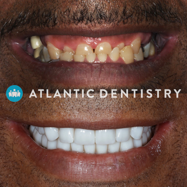 Before and after smile at Atlantic Dentistry in Jacksonville, FL