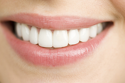 Closeup of woman smiling with perfect teeth