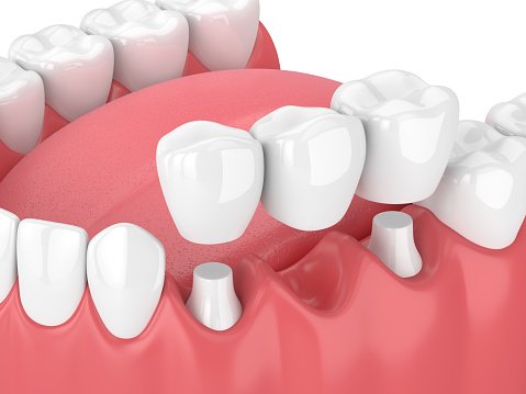 Dental bridges from Atlantic Dentistry in Jacksonville, FL
