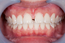 When Does a Frenectomy Become Necessary?
