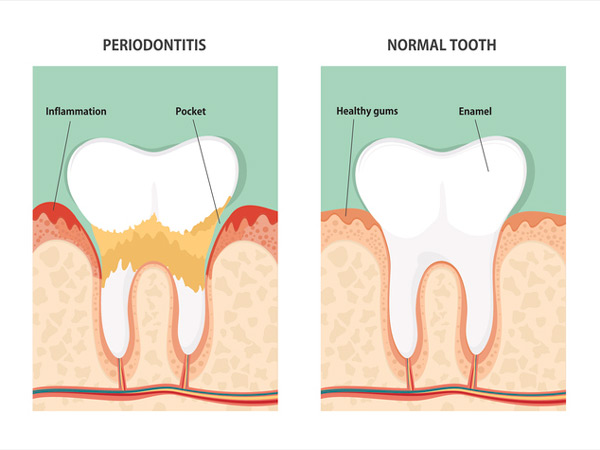 Diagram of periodontitis and health tooth shown at Atlantic Dentistry in Jacksonville, FL